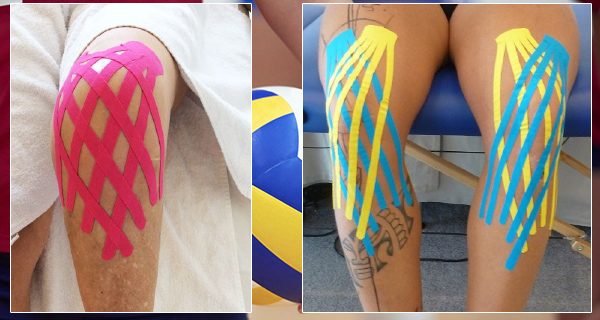 Jumpers Knee - Taping